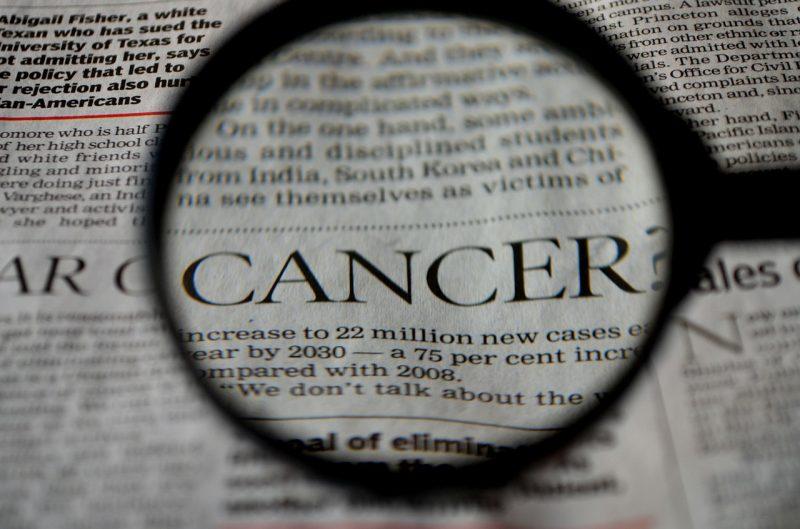 Cellule B collegate all'immunoterapia per il melanoma
